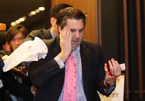 美国驻韩大使遭袭击受伤